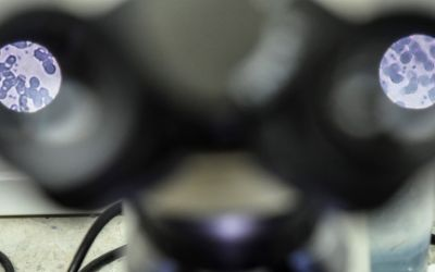 Blutprobe mit vermutlichem Zika-Virus durch das Mikroskop betrachtet